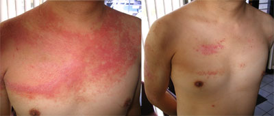 Tony Helson Psoriasis Before & After